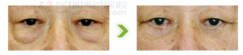 70岁老人做去眼袋手术前后对比图