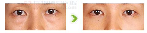 去眼袋术手术前后对比图