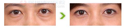 内窥镜微创去眼袋手术前后对比图