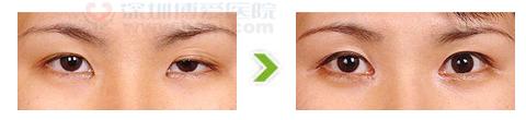 单侧上睑下垂整形手术前后对比图(二)