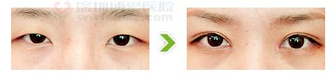 内眦开大合双眼皮术手术前后对比图
