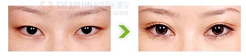 内眼角开大术手术前后对比图