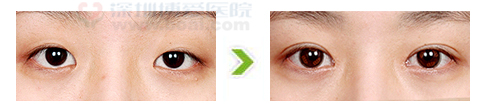 内眼角开大术并双眼皮术手术前后对比图