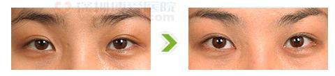 外眼角开大合其它眼部修复手术前后对比图