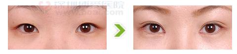外眼角开大合双眼皮术手术前后对比图