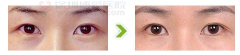 外眼角开大术合祛眼袋手术前后对比图