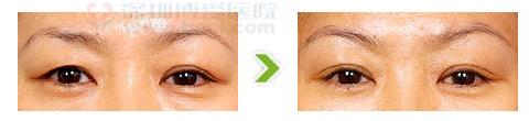 切眉术手术前后对比图
