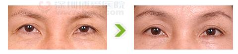 切眉术手术前后对比图(二)