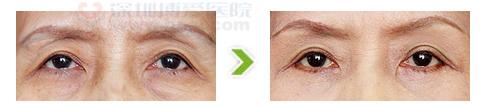 切眉术手术前后对比图(三)