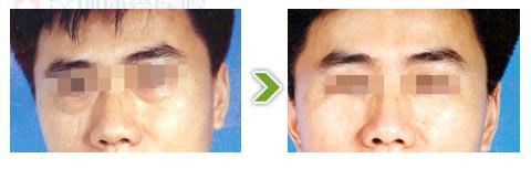 超脉冲激光祛眼袋手术前后对比图(一)