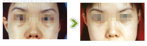 超脉冲激光祛眼袋手术前后对比图(二)