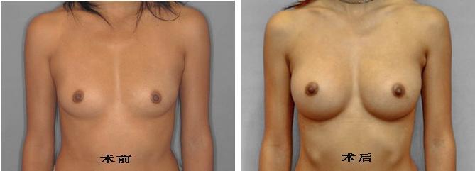 假体隆胸手术前后对比图(一)