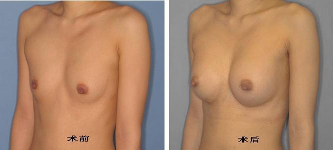 假体隆胸手术前后对比图(三)
