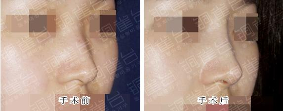 隆鼻手术前后对比图