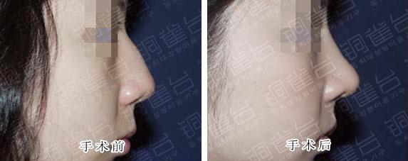 驼峰鼻整形手术前后对比图