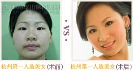 杭州第一人造美女