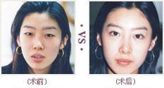 韩式综合改脸型