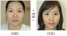 改脸型效果对比图