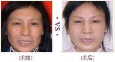 彩光嫩肤手术较果前后对比图