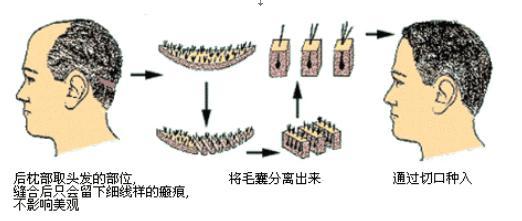 头发移植术图文对照