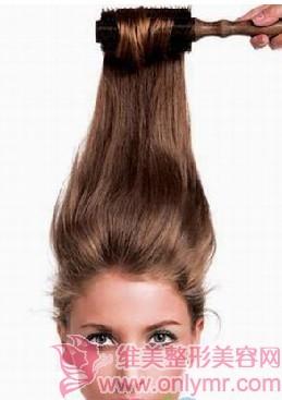 头发种植术的治疗方法(上)