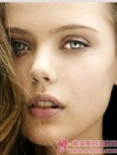 膨体隆鼻恢复时间要多长呢?