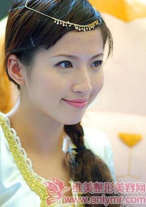 丰下颌整形手术的效果如何?(一)